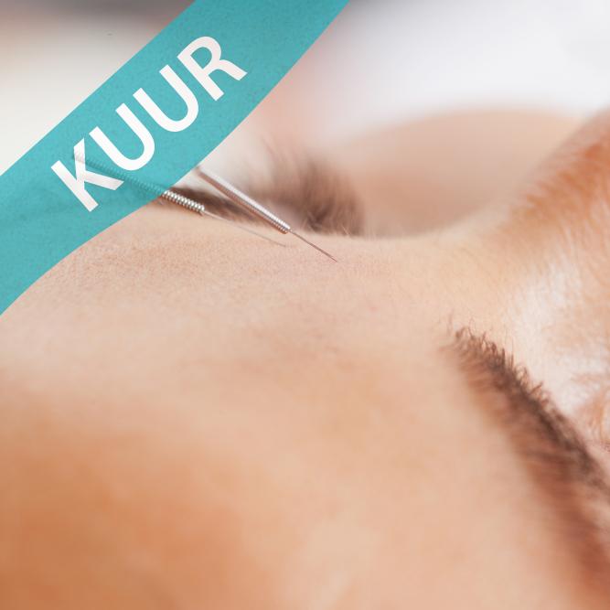 10x Cosmetische acupunctuur - 120 MIN