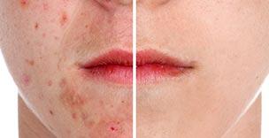 Huidproblemen-acne