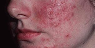 huidverbeterend-rosacea