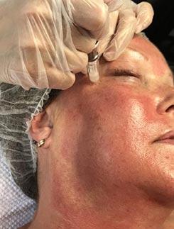 Behandeling lijntjes rond de ogen